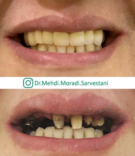 ایمپلنت کاشت دندان ثابت