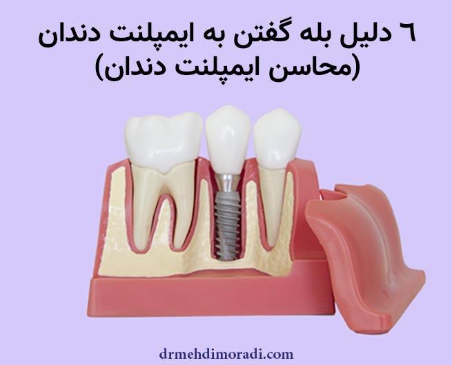 محاسن ایمپلنت دندان