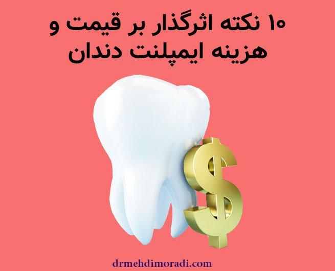 قیمت ایمپلنت دندان در شیراز