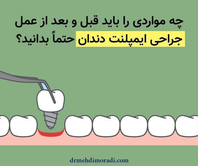 مراحل قبل و بعد از جراحی ایمپلنت دندان شیراز دکتر مهدی مرادی سروستانی